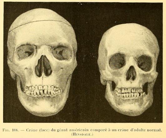 gians_skull.jpg